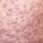 drug allergy rashes