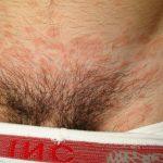 rash in groin area female