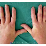 raynaud syndrome pictures