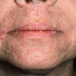pictures of perioral dermatitis