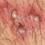 pictures of male genital herpes
