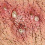 herpes photos in men