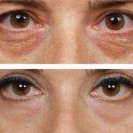 peeling eyelids