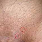 genitle warts photos