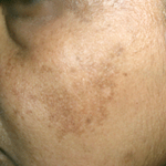 acanthosis nigricans treatments