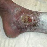 decubitus ulcer