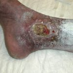 decubitus ulcers