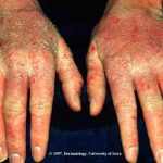atopic dermatitis hands