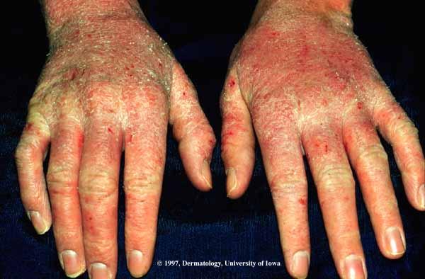 atopic dermatitis hands - pictures, photos