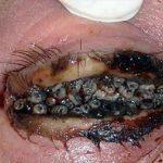 oral steroids for eczema