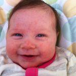 baby acne pics