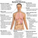 what cause bacterial infections