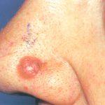 nodular basal cell carcinoma