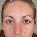 melasma forehead