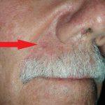 moles on lips
