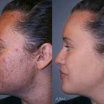 best antibiotics for acne