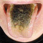 hairs on tongue