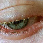 blepharitis images