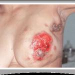 nipple fungus