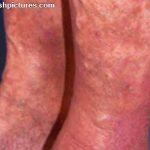diabetic leg rash