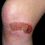 epidermolysis bullosa skin condition