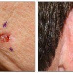 basal cell carcinoma define