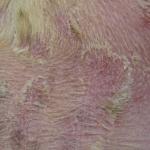 crusty skin