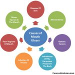what causes mouth ulcer
