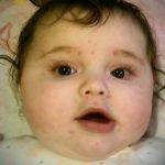 chickenpox infant