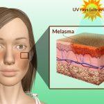 causes of melasma