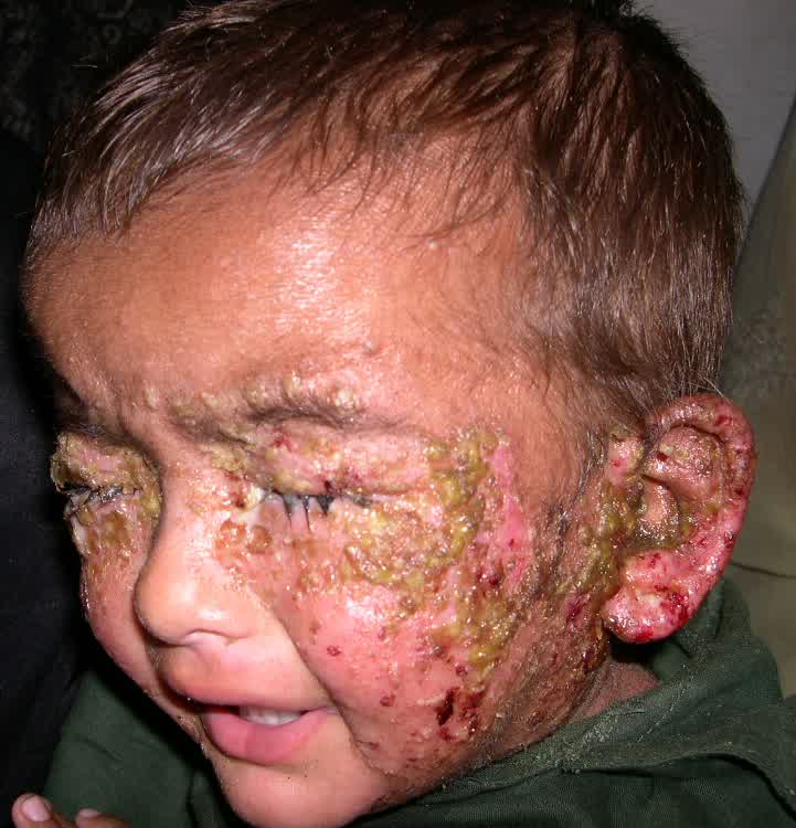 Impetigo Rashes Pictures Pictures Photos