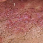 pictures of female genital herpes