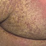 pictures of crusted scabies