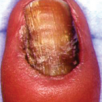toenail split down middle