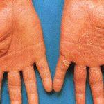 dry skin on palms