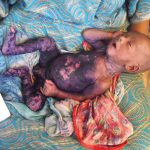 scalded baby syndrome