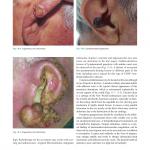 dermatological diseases
