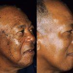 dermatosis papulosa nigra treatment