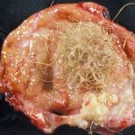 dermoid cyst pictures