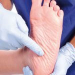 diabetic foot ulcers pictures