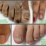 different types of foot fungus