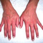 erythromelalgia cause