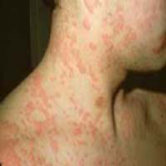 sulfa drug allergy