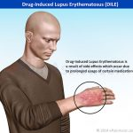 drug induced lupus symptoms