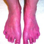 erythromelalgia symptoms