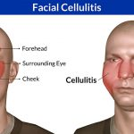 facial cellulitis pictures