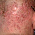 folliculitis cure
