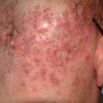 treatment of folliculitis