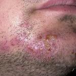 how to prevent folliculitis