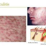 what causes folliculitis